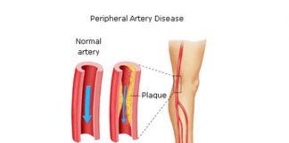 периферни артериални заболявания
